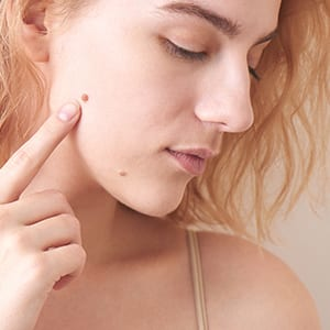 Moles on Face: Condition that Requires Mole Removal Treatment