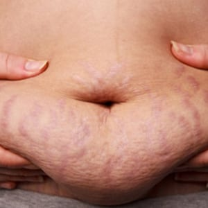 Stretchmark due to Hormonal changes Cosmetic Medical Clinic - CMC - Sydney